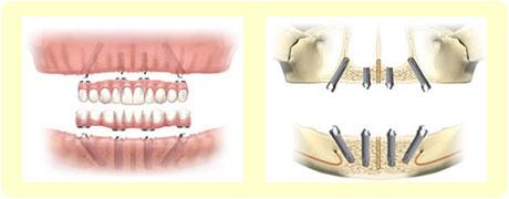 オールオン4の模式図1|香川県高松市でオールオンフォー治療を実現した歯医者